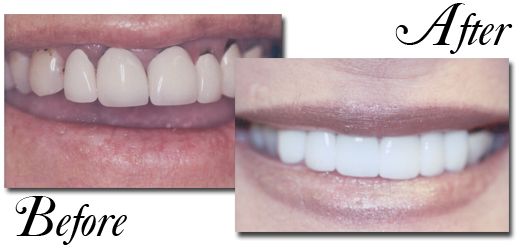 She Wanted A Brighter Smile And Unfortunately Had Decay Present Old Crowns Were Removed All Porcelain